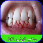 Download علاج التهاب اللثة 1.0 APK
