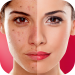 Free Download Face Blemishes Cleaner & Photo Scars Remover 1.3 APK