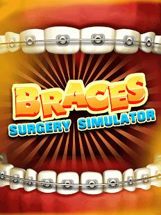 Braces Surgery Simulator – Doctor Games 2021 v screenshots 1