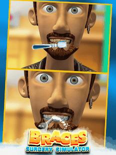 Braces Surgery Simulator – Doctor Games 2021 v screenshots 3