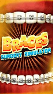 Braces Surgery Simulator – Doctor Games 2021 v screenshots 6