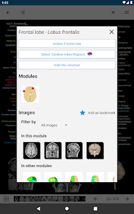 e-Anatomy v5.0.3 screenshots 13