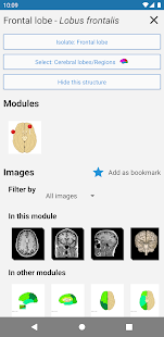 e-Anatomy v5.0.3 screenshots 6
