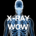 Download X-RAY WOW 1.3 APK