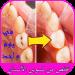 Free Download تخلص من تسوس الأسنان في يوم واحد 1.0 APK